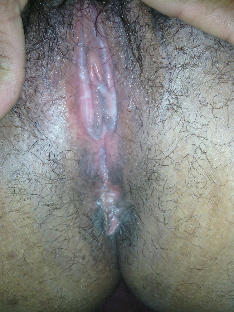 The big clitoris pictures