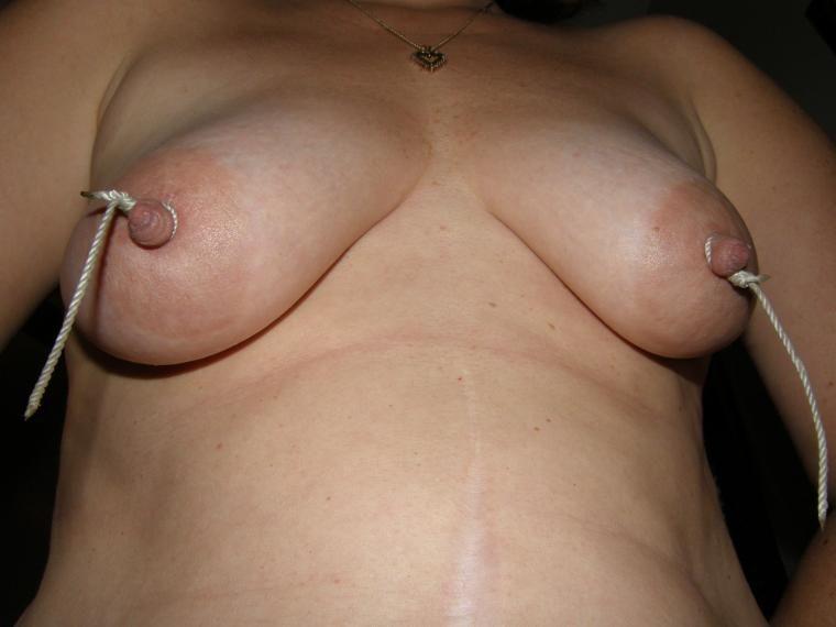 Tied nipples